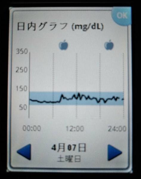 血糖値スパイク,ストレス,サザエさんシンドローム